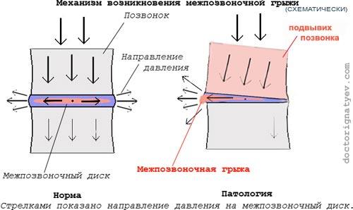 Поднимаешь правую ногу боль спина с правой стороны