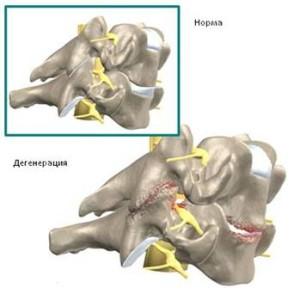 Колющая боль в левом подреберье сзади со спины под лопаткой