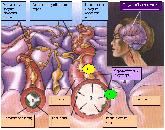 Лечение вены на ногах тромбофлебит