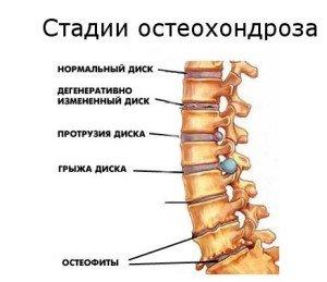 Дегенеративные изменения межпозвонковых дисков грудного отдела позвоночника
