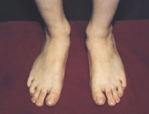 Повреждение капсульно связочного аппарата коленного сустава