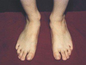 Из-за чего вены сильно выделяются на ногах
