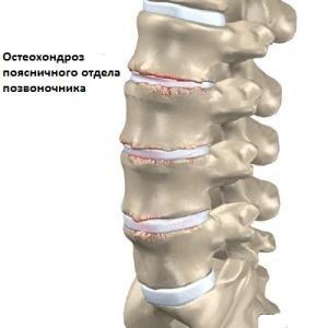 Какие занятия при болях в спине