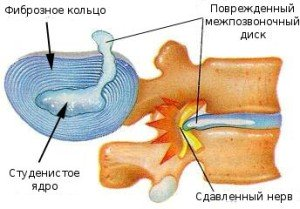 Болит спина нога и пятка