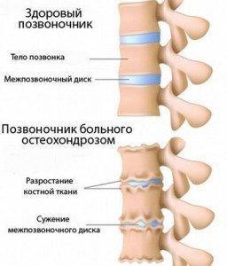Массаж что бы не болела спина