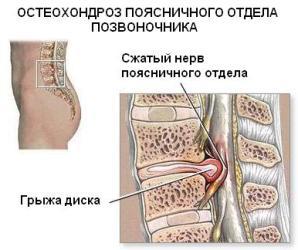Лечение шейного грыжа